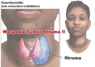 Cara Mengobati Tumor Struma