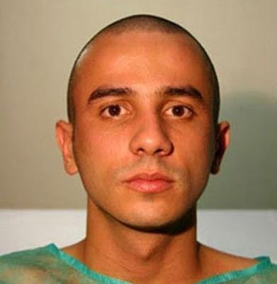 brazilian man dog face plastic surgery