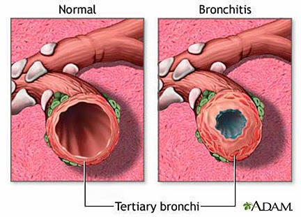 ICD 9 Code For Bronchitis