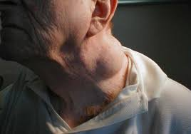 Laryngeal cancer patients have symptoms like?