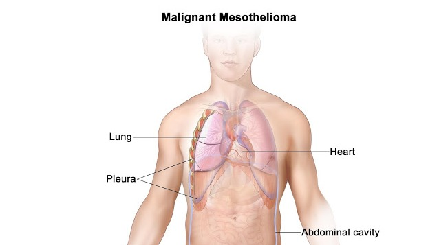 Immunotherapy Treatment For Mesothelioma