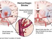 Pengobatan Stroke Ringan Secara Medis
