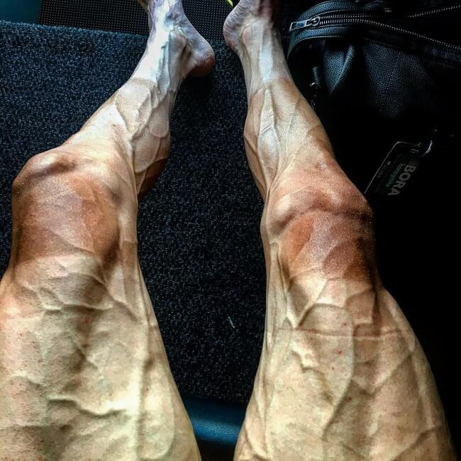 15 Pictures That Prove How Incredibly Powerful The Human Soul Can Be - 27-year-old Polish cyclist Pawel Poljanski's legs after 16 stages of the big cycling event in France.