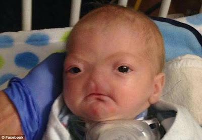 Bayi Ajaib Yang Lahir Dengan Kondisi Langka di Dunia