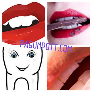Berbagai Cara Memutihkan Gigi