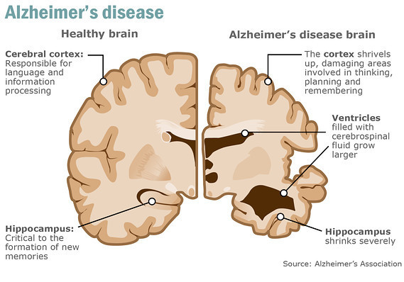 What is Alzheimer's Disease : Cause of Dementia