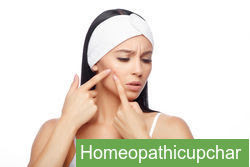 Pimples !  होम्योपैथिक मेडिसिन !