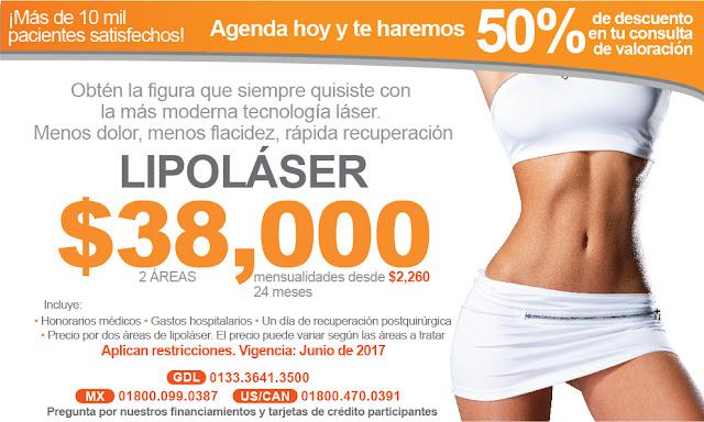 lipolaser lipoescultra precio promocion abdomen plano laser lipolisis guadalajara
