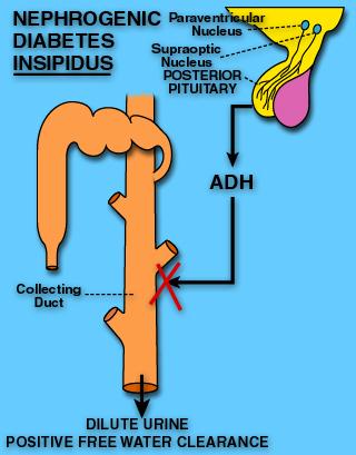 sinais e sintomas diabetes insípida