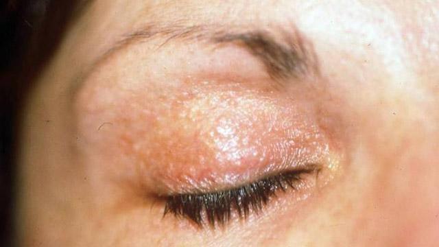 هل تعلمين أن طلاء الاظافر قد يسبب لك الحساسية؟