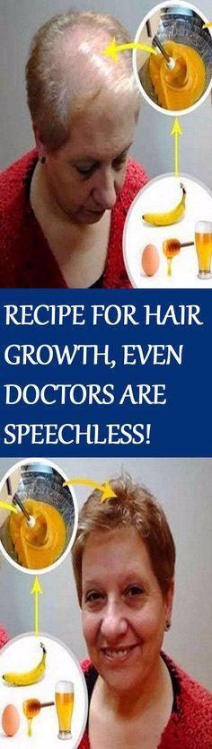 Provillus – Scientifically Proven Hair Loss Remedy