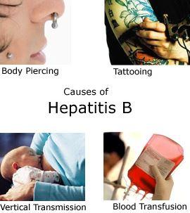 Hepatit B nasıl teşhis edilir?