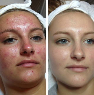 Acne After Stopping Birth Control