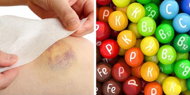 Các vết bầm tím xuất hiện trên da không rõ nguyên nhân báo hiệu bệnh