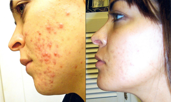 Best Tips For Cystic Acne: Best treatments for cystic acne