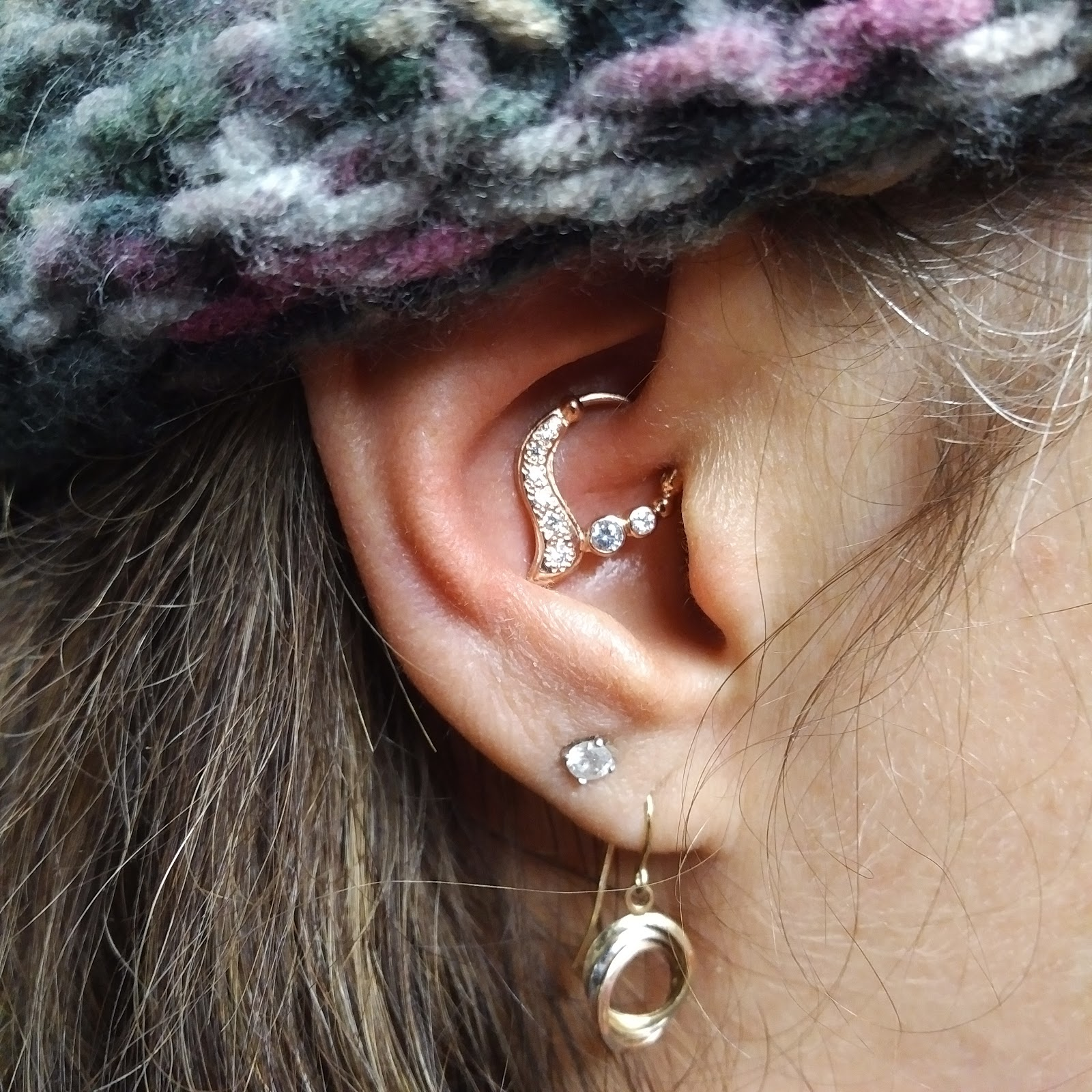 Pros and cons of hood piercing