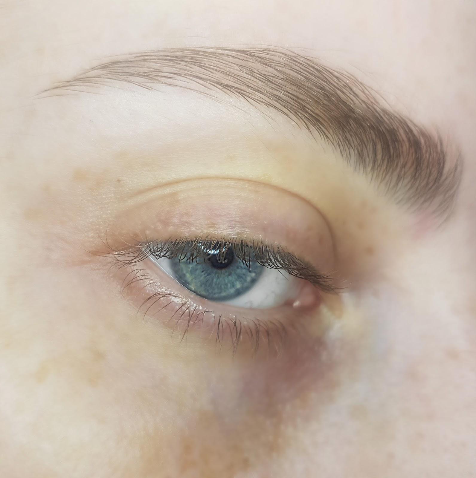 Bare Eyelid