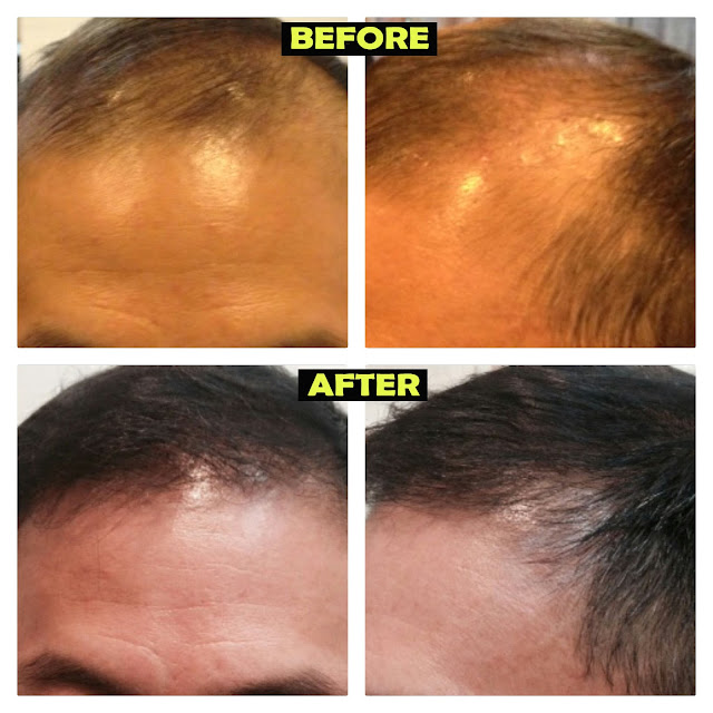 before and after - hair transplant