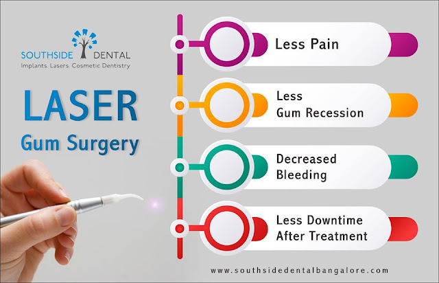 laser gum treatment in india