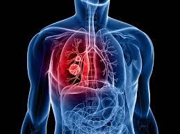 السرطان: الرئة ورم الظهارة المتوسطة الاسبستوس