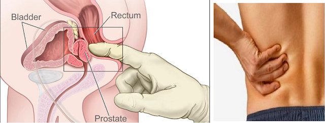 Les 10 principaux symptômes du cancer de la prostate que les hommes ne devraient JAMAIS ignorer !