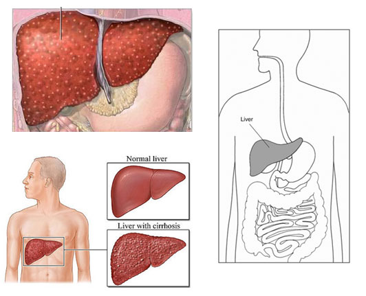 an overview of liver cirrhosis Liver health  overview  symptoms of liver disease can vary and may even be confused with other conditions  the liver may heal itself and not develop cirrhosis however, as the liver .