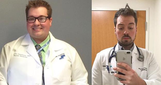 Γιατρός κατάφερε να χάσει 57 κιλά κάνοντας την διαλειμματική νηστεία και έγινε αγνώριστος