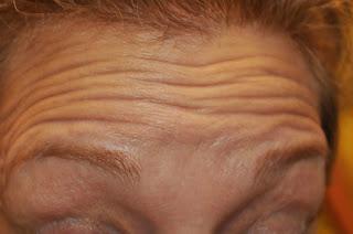Remedios para las arrugas
