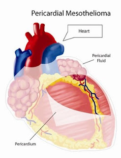 All Pericardial Mesothelioma Information FAQ