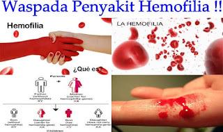 Terus Keluar Darah Saat Luka (Hemofilia)
