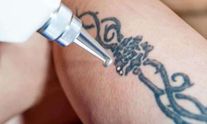 Μετανιώσατε για κάποιο τατουάζ; Δείτε πώς γίνεται αφαίρεση με λέιζερ