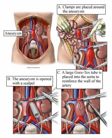bauch aorta luft