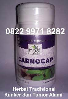 Cara alami mengobati kanker dan tumor dg Carnocap asli hpai