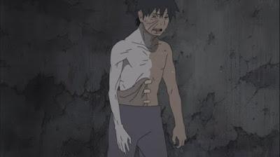 Kenapa Tangan Kanan Naruto Selalu Dibalut Perban?