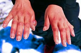 is a condition in which the medicine is any damage to the skin or other tissues due to ex What Temperature Is Freezing