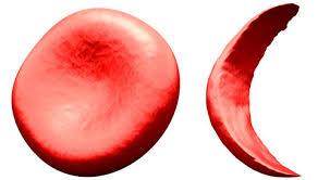 علاج فقر الدم