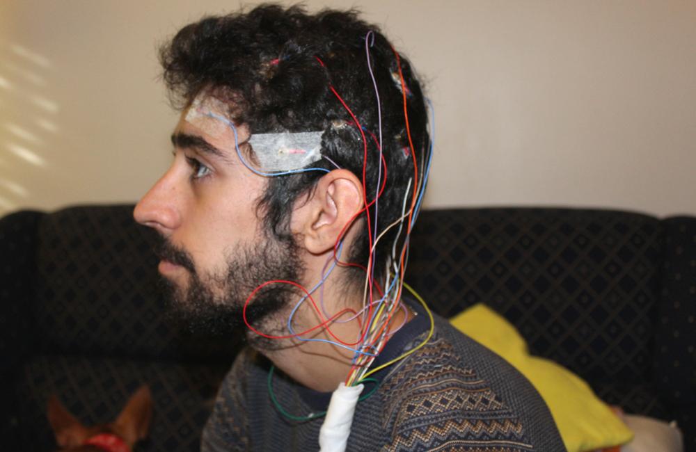 Epilepsia+ electroencefalograma+ blogue ela e ele + ele e ela+ exame à cabeça + desmistificar a doença