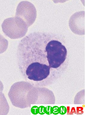 Pseudo-Pelger cell looking like sunglasses (toxic or myelodysplastic cause).