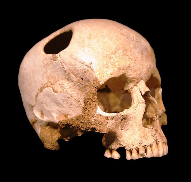 Розповіли, для чого давні лікарі пробивали пацієнтам черепи