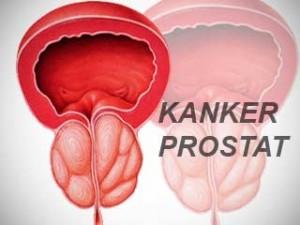 Mengenal Kanker Prostat - MajalahKesehatan.com, Mengenal Kanker Prostat - Dokter Indonesia, Kanker Prostat - Gejala, penyebab dan mengobati