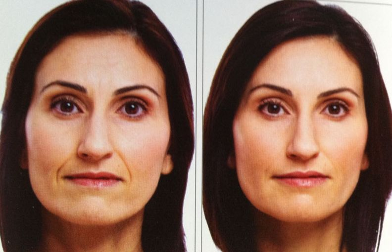 eradicate and minimize marionette and laugh folds with exercises for the face