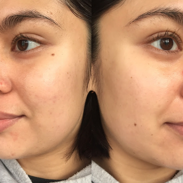 Retin A Before and After Photo - After, Good Tretinoin Acne Results
