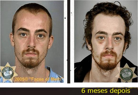Drogas-homem-dependente