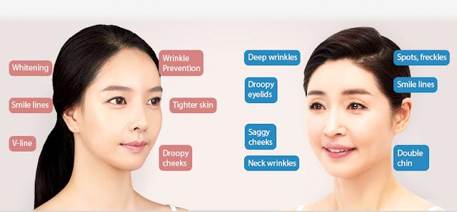 [FAQ] Korea Anti-Aging at Wonjin Plastic Surgery Clinic Seoul Korea