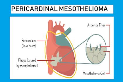Pericardial Mesothelioma: Definition, Causes, Symptoms, Treatment, Prognosis