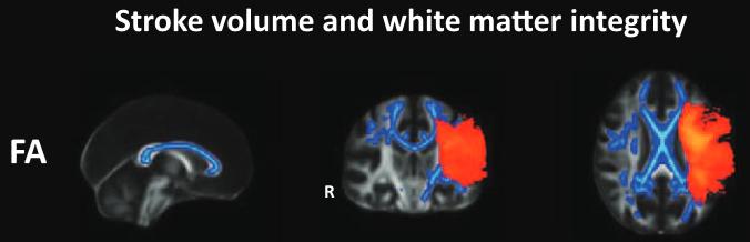 図:脳梗塞患者の白質繊維の異方性