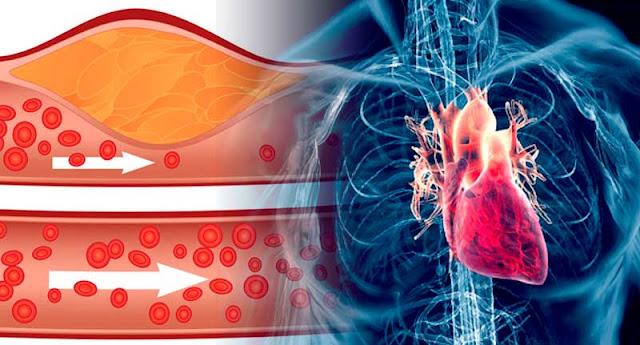Controla  la hipertension y el colesterol con estos remedios caseros.
