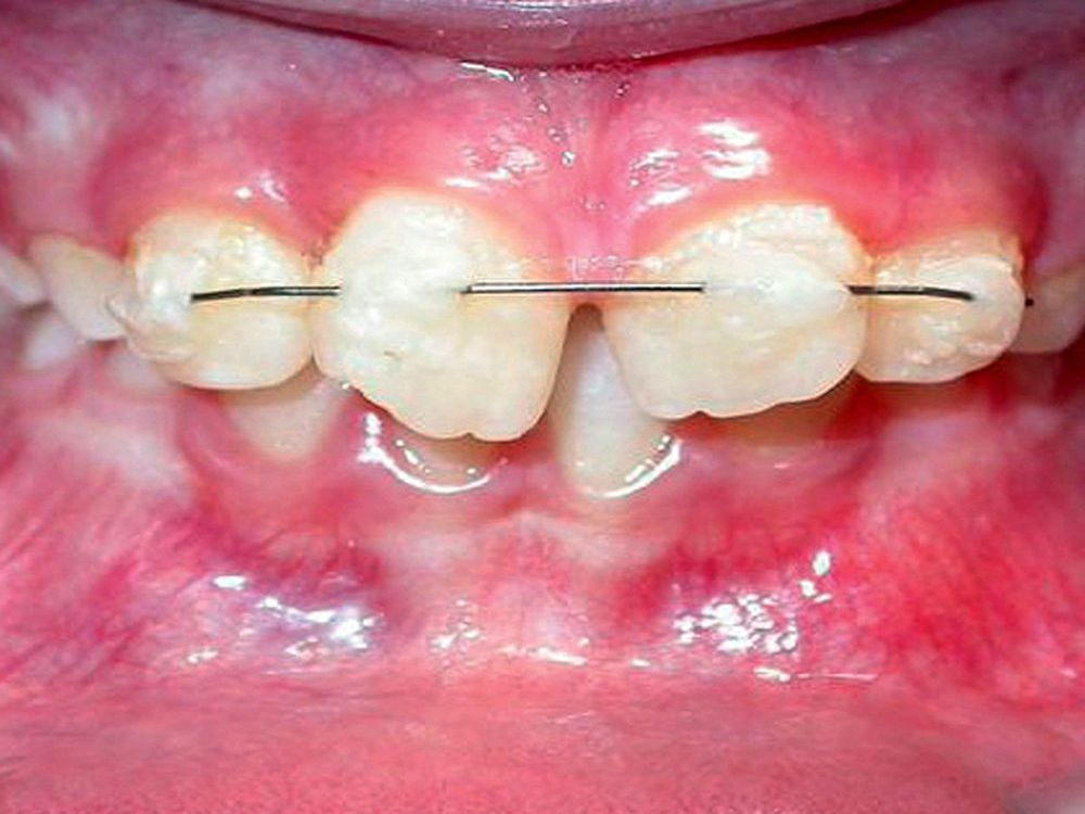 Reimplantación Dental