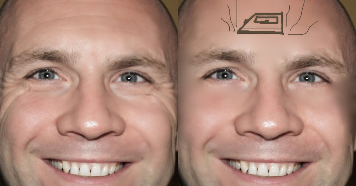 paralyzed muscles facial botox Does