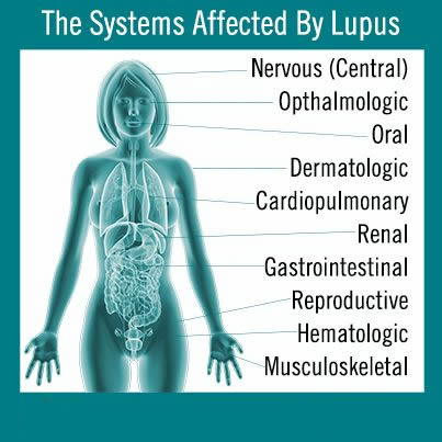 Systems effected by Lupus